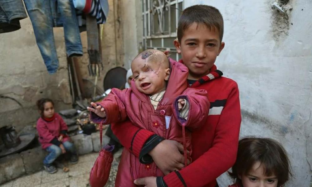 Bebé sirio es símbolo de solidaridad, solidaridad con Karim, Guerra civil en Siria, #solidaritywithKarim